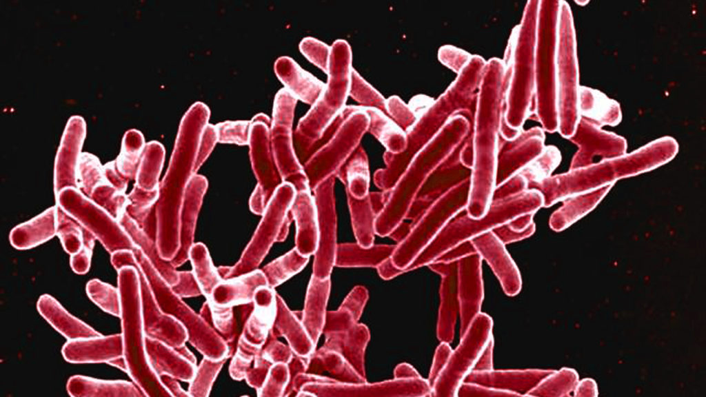 Mycobacterium tuberculosis, the bacterium that kills 1.5 million people each year.